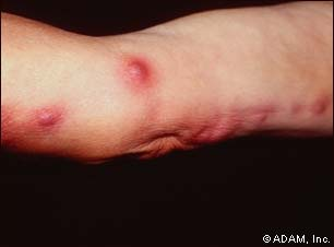 augmentin skin infection