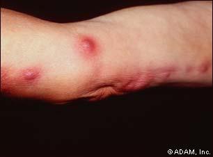 sporotrichosis1